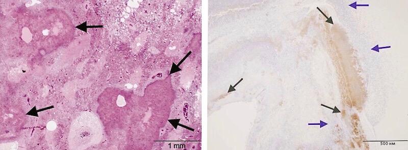 гистологическая картина пневмонии птиц вызванной пастереллезом. pasterella multocida