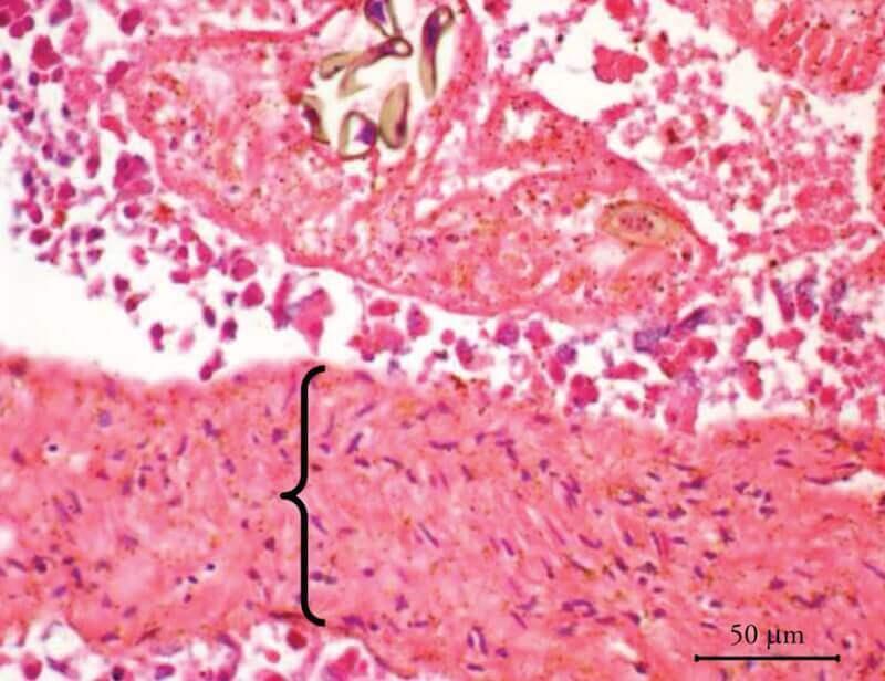 Гистологический препарат почечного гельминтоза попугая ара