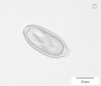 глисты попугаев, яйцо капиллярий (Capillaria spp)
