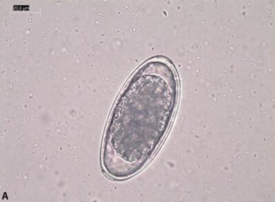 глисты сингамусы Syngamus spp. у попугаев жако